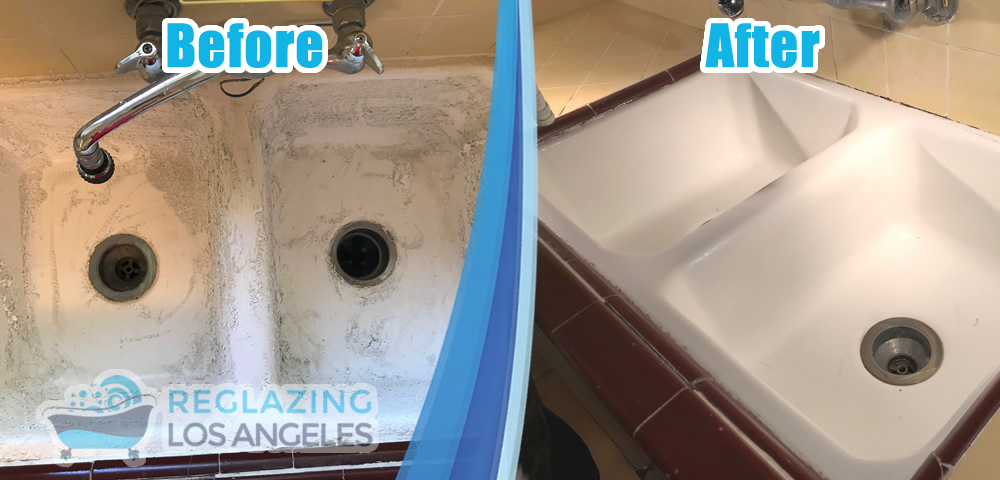 kitchen sink reglazing before and after example